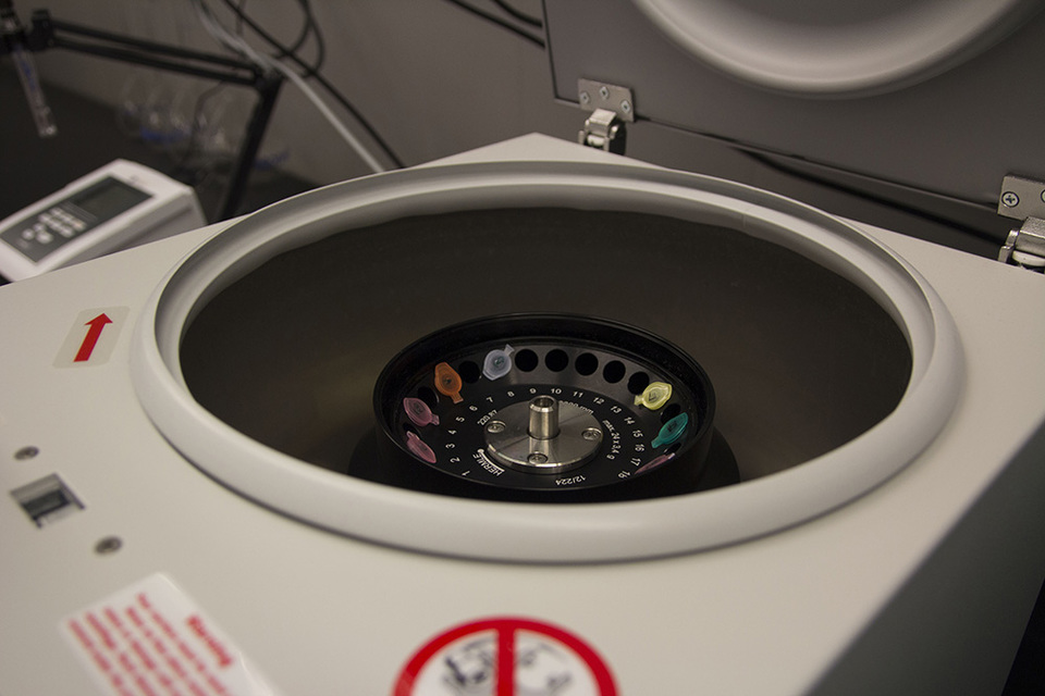 Standard centrifuge for dna fingerprint